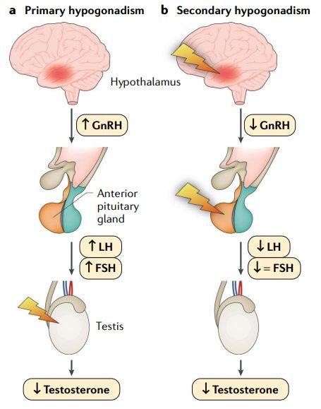 primary and seconday hypogonadism